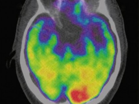 brain-amygdala